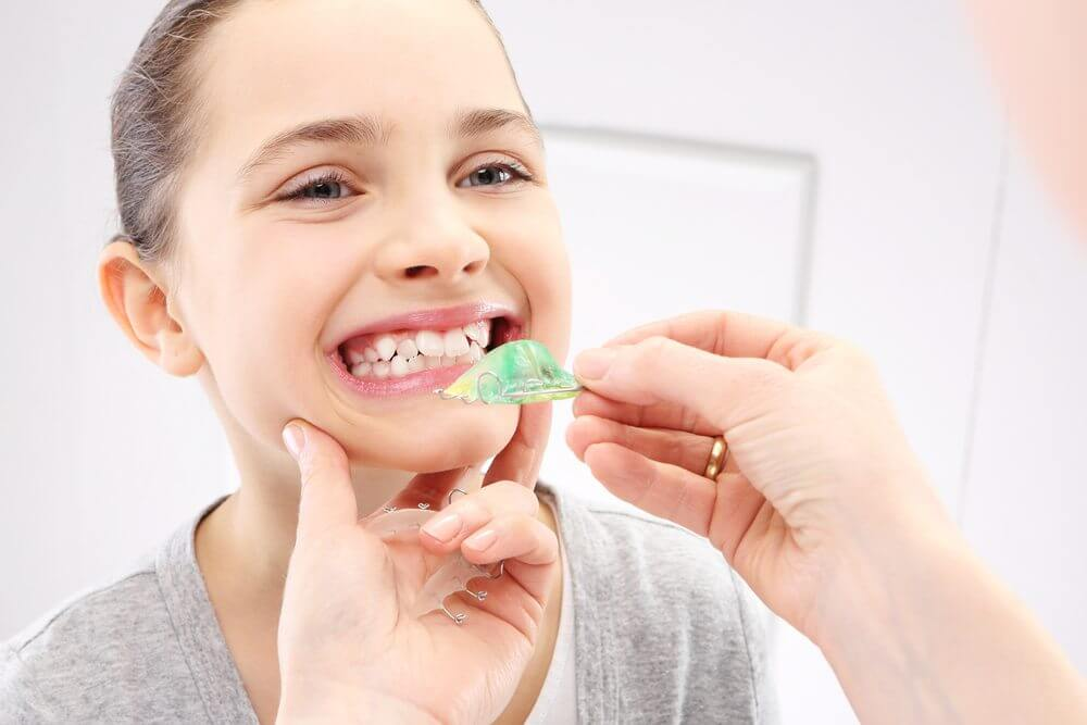 Orthodontic Two-Phase Treatment