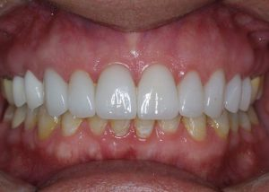 An after image of the patient's top teeth - straight and pearly white