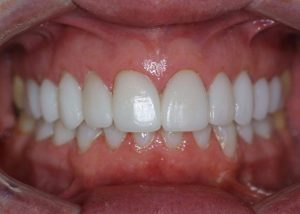 An after image of perfectly straight and bright white teeth