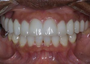 An after picture of straight and pearly white teeth