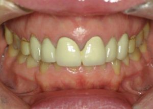 A before picture of an overbite with yellow teeth