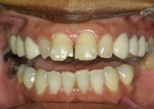 A before picture of spaced out, chipped, and yellow teeth